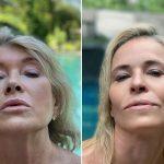 Dagen McDowell facelift botox nose job