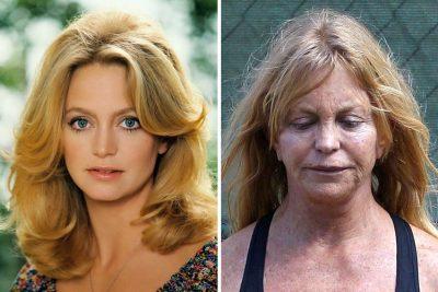 Goldie Hawn botox boob job lips