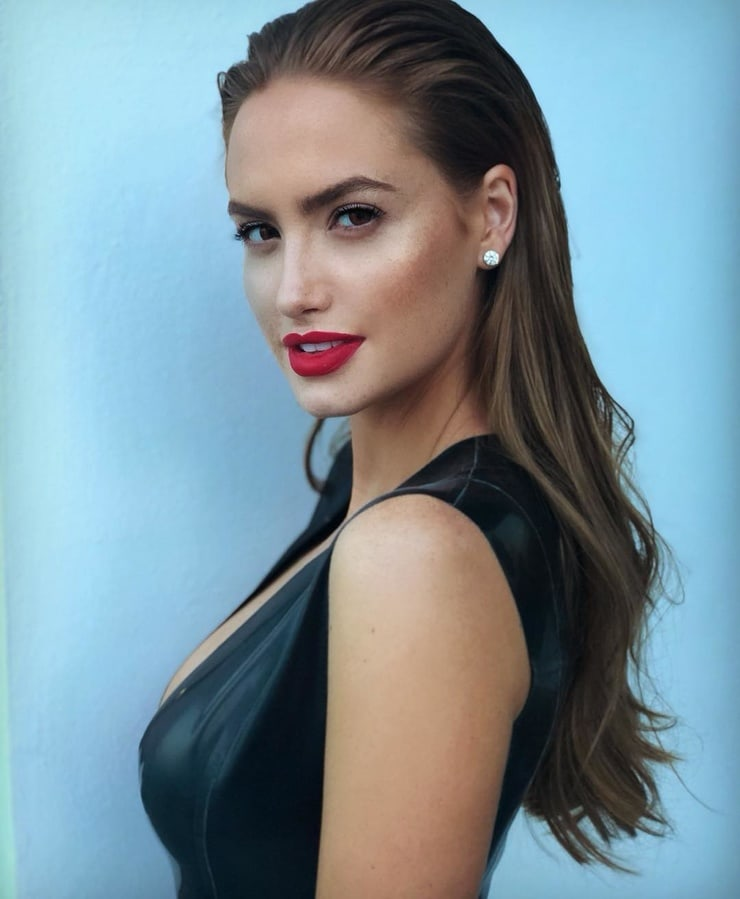 Haley Kalil botox
