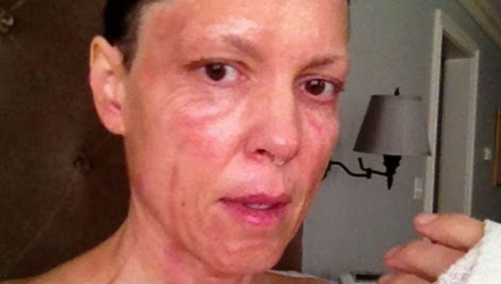 Hannah Storm cosmetic surgery