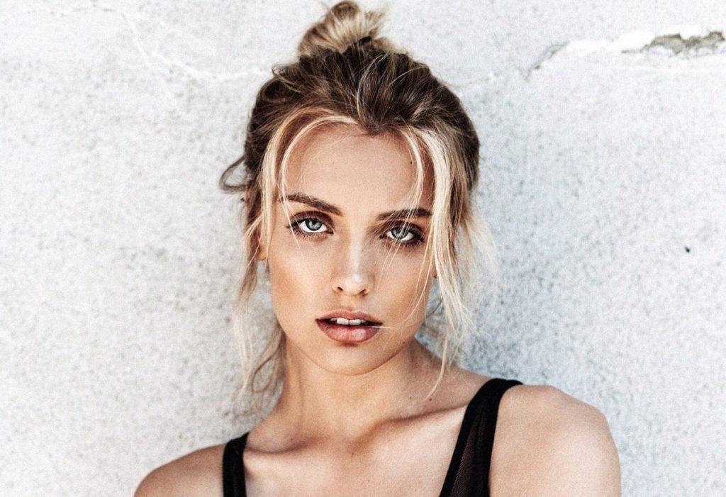 Wallis Day facelift lips botox
